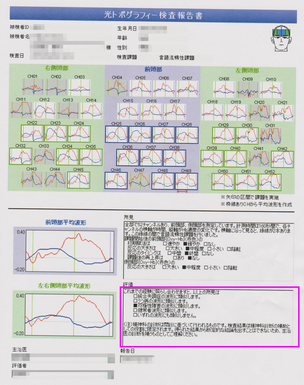 光トポグラフィー検査 体験談